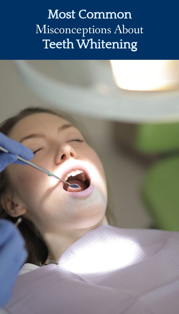 , Most Common Misconceptions About Teeth Whitening