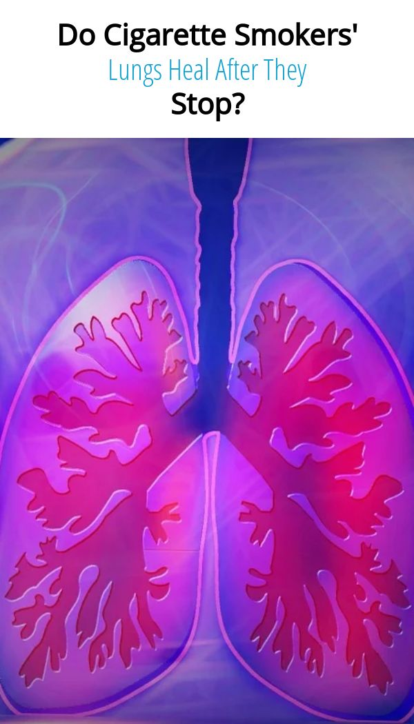 , Do Cigarette Smokers' Lungs Heal After They Stop?